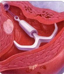 Мифы о вреде внутриматочной спирали