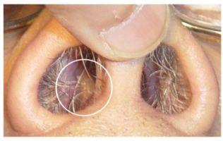 Полипы носа: операция или консервативное лечение?