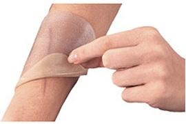 Изобретен пластырь для профилактики рубцов после операций