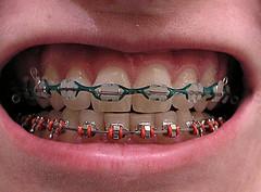Некоторые ортодонтические инструменты провоцируют появление бактерий