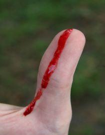 Первая помощь пострадавшему: как остановить наружное кровотечение?