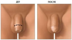 Медицинское обрезание крайней плоти