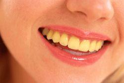 Пожелтение зубной эмали. Как справиться с проблемой?