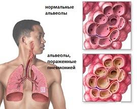 Пневмония. Новый взгляд на профилактику и вакцинацию