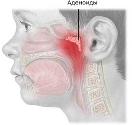 Лечение аденоидов у детей при помощи гомеопатии