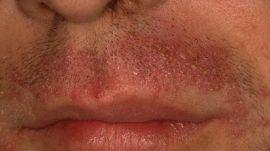 Осложнения после бритья. Как бороться?