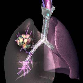 Рак легких и его причины