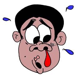 Кровотечение из носа. Как остановить своими силами?