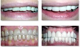 Люминиры – счастливая улыбка на долгие годы