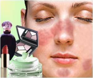 Аллергия на косметику
