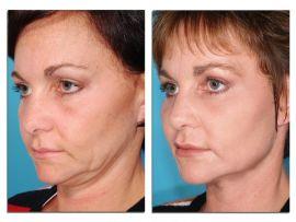 Лазерный лифтинг лица до и после