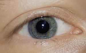 Пероксидные системы очистки контактных линз - плюсы и минусы.