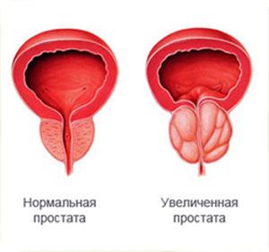 Аденома предстательной железы. Симптомы