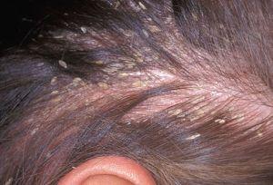 Как лечить себорею на голове народными средствами?