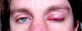 глаз, пораженный ячменем