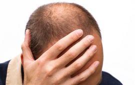 А знаете ли вы, что ранее облысение у мужчин указывает на серьезные проблемы со здоровьем?