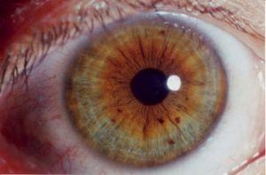 Иридодиагностика. 11 симптомов, которые может и должен знать каждый