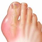 большой палец ноги, пораженный подагрой